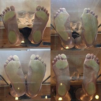 前橋市のひかり接骨院での足の位置の評価
