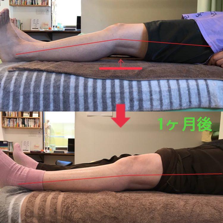 膝の痛みの症例