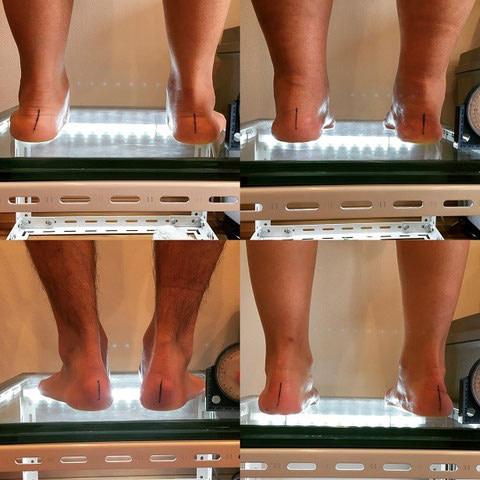 前橋市のひかり接骨院での足部の評価