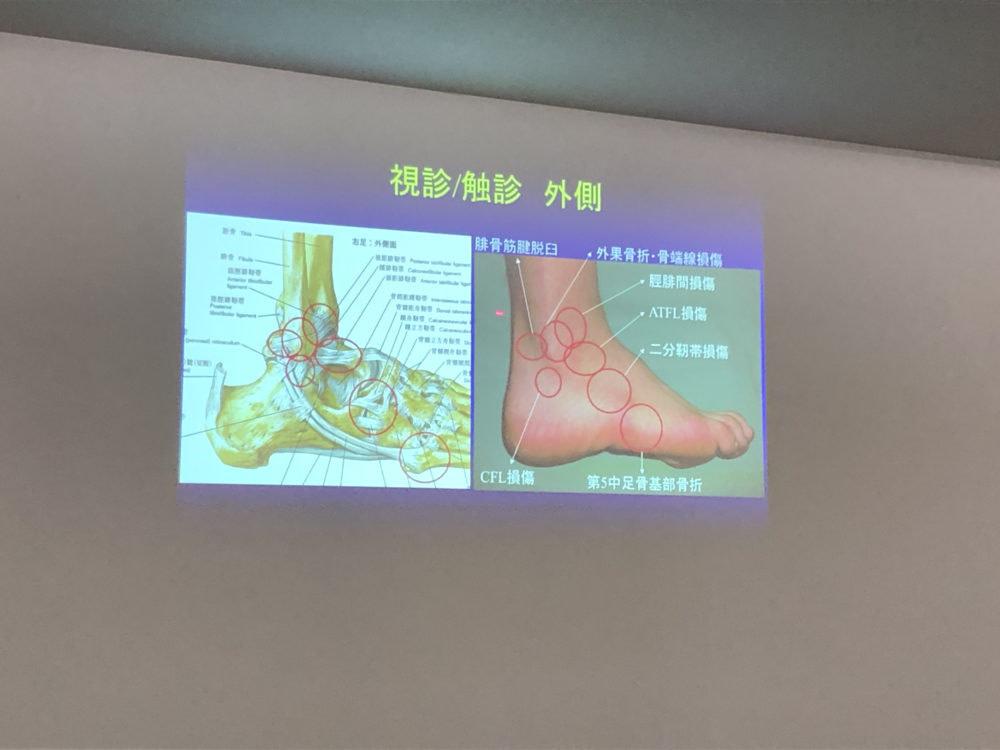 足関節外傷