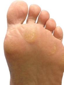 足底筋膜炎の足底の機能