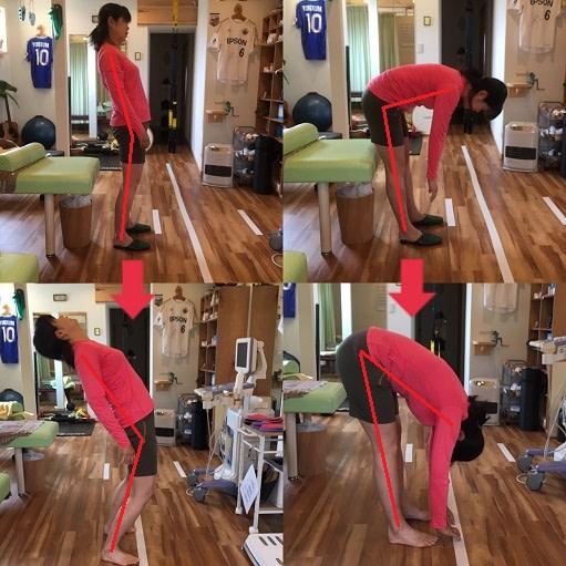 女性の腰痛の症例