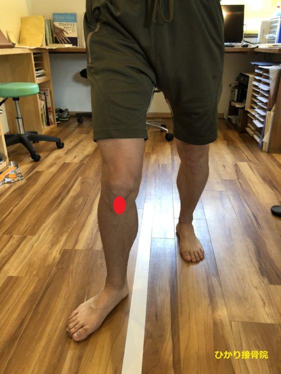足底筋膜炎の膝の評価
