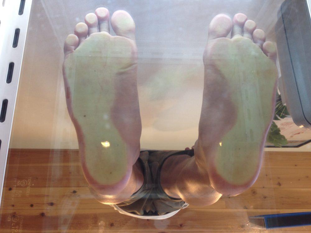 足底筋膜炎の足裏の評価