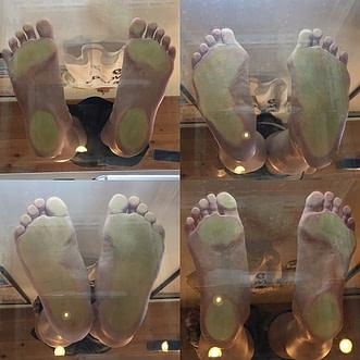 ひかり接骨院での足裏の評価